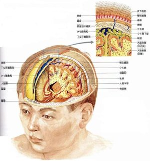 Headachebrain
