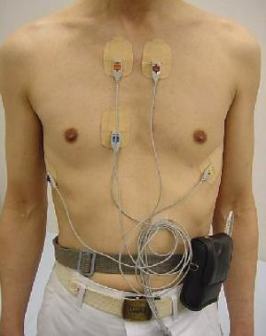 Horutaelectrocardiogram